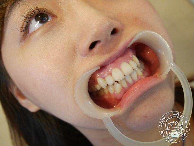 新竹牙套推薦